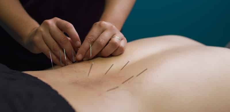 acupuncture york